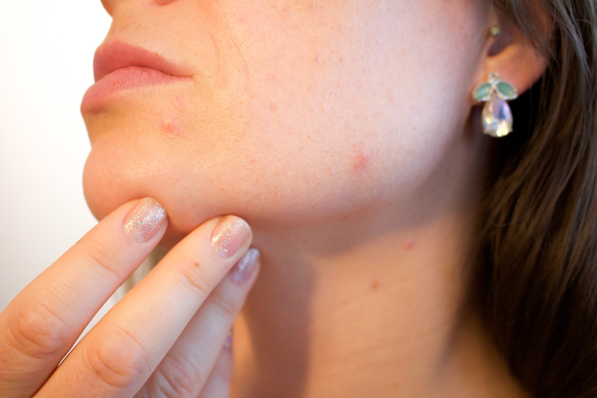 Causes of Pimple